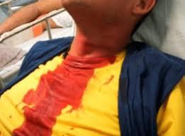 Motoqueiro tem pescoço cortado por linha de pipa em Imperatriz